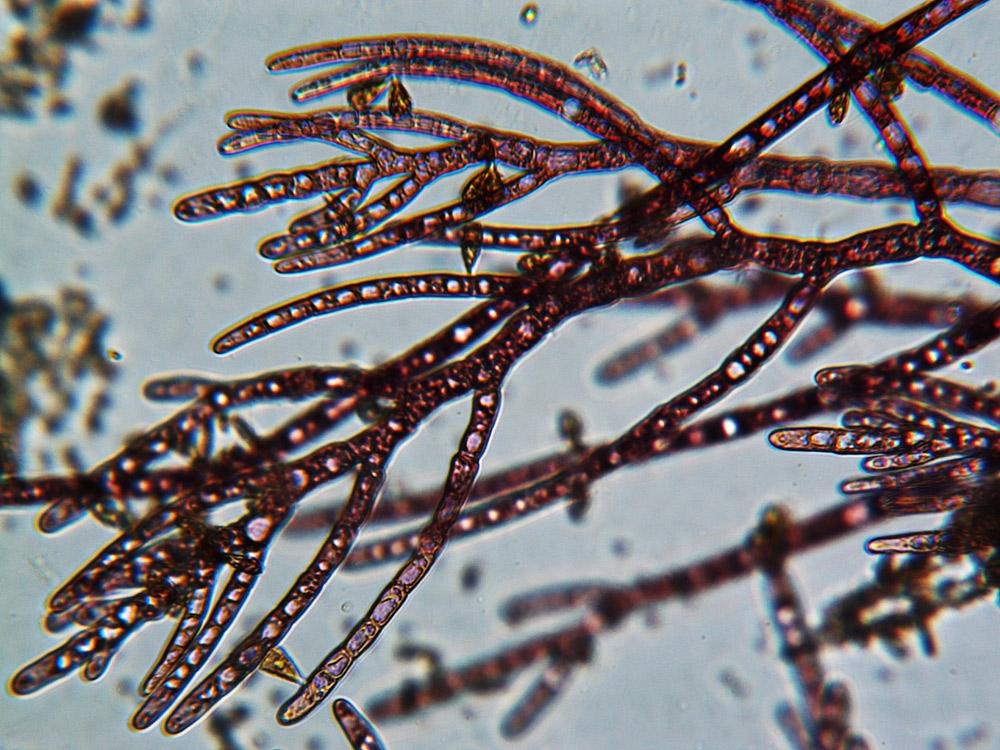 Atomic mikroskop massive ausfuehrung linsen objektive koffer